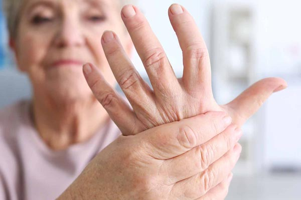 lupus and rheumatoid arthritis